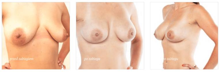 podniesienie piersi przed i po
